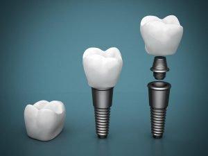 Dental Implants Dentist Deer Park