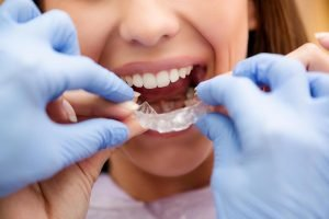 Invisalign | Dentist Deer Park