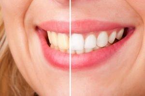 Teeth Whitening Dentist Deer Park