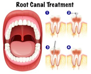 Dentist Deer Park Tips Root Canal Explained A Step-By-Step Guide