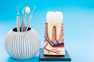 Root Canal and Endodontic Treatment Dentist Deer Park