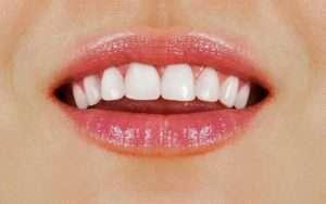 Dentist Deer Park Tips 6 Effective Ways To Get Healthy White Teeth Featured