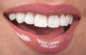Porcelain Veneers in Deer Park Should You Shop Around