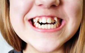 Top 4 Solutions for Crooked Teeth